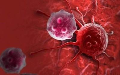 可穿戴设备从血液中捕获癌细胞 助癌症治疗一臂之力