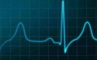 QardioCore:潜在高危人群福音 可加强对心脏的监测