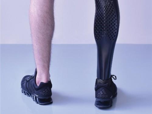 3D打印假肢