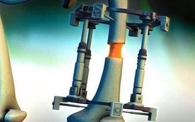 断骨增高法:医生将客户的腿锯断加入金属使其变长